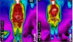 しもやけで冷えていた指先がサーモグラフィーの写真で真っ赤になって温まったのがわかるようになりました!