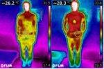 整体:段々施術をしていくと体が暖まっていくのがわかると思います。サーモグラフィーでとってみました